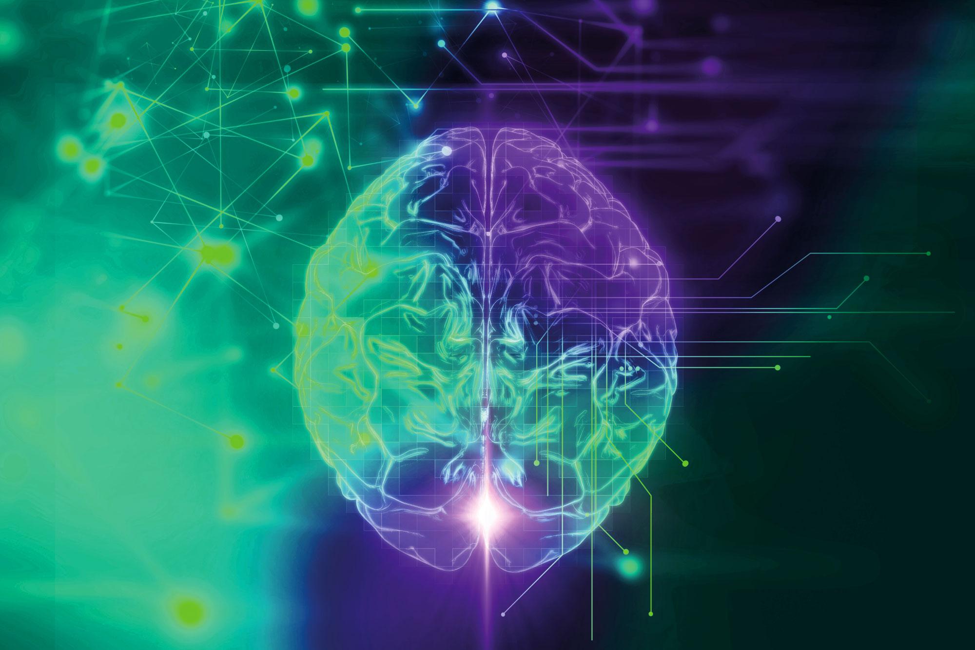 Hjärnhälsa